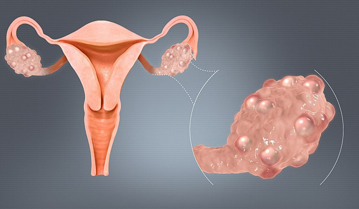 Polycystic Ovaries pcos syndrome image