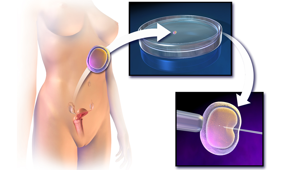 intracytoplasmic sperm injection ivf technique