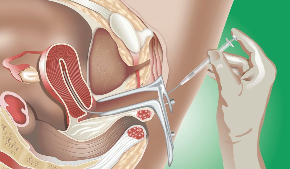 IUI insemination image