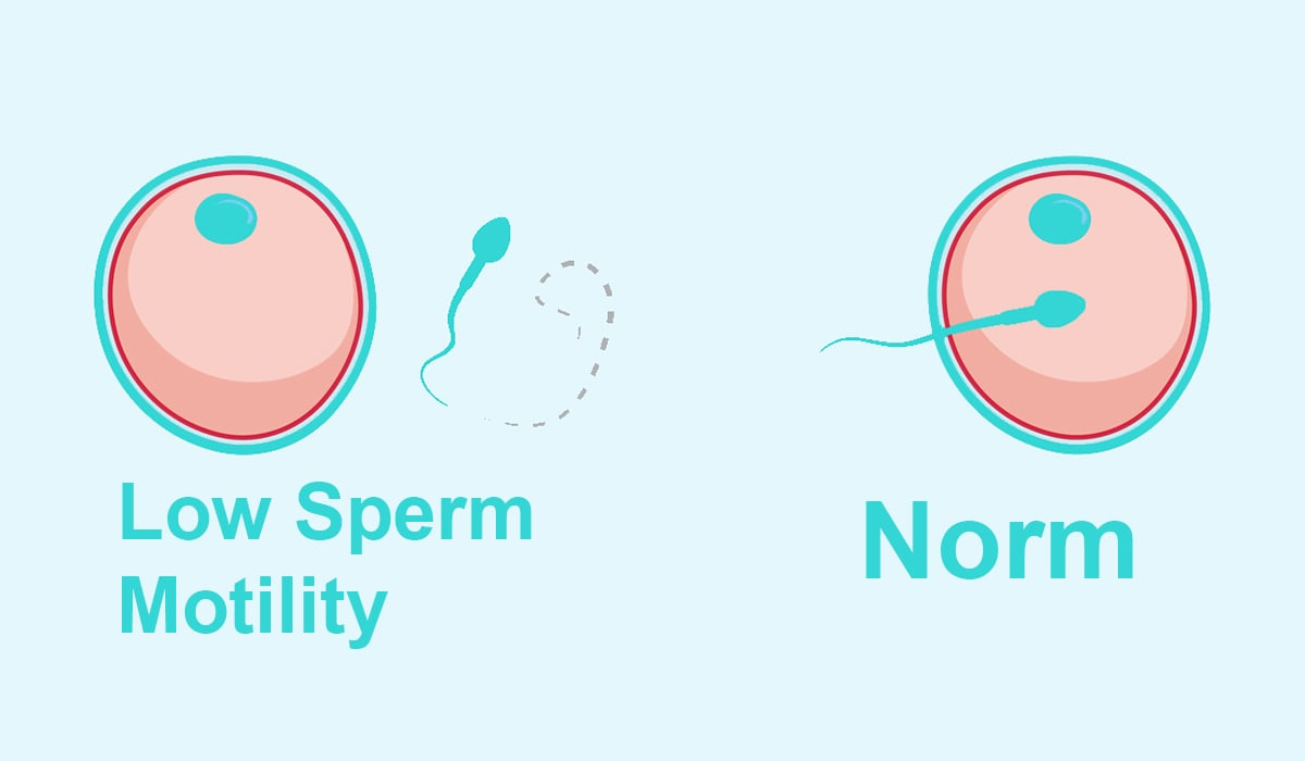 normal and low sperm motility