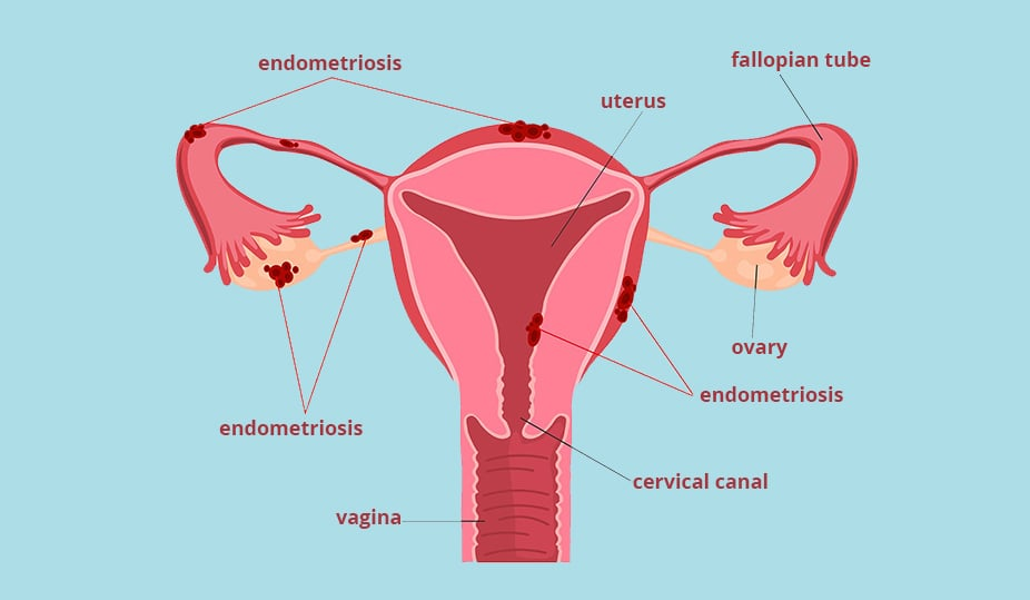 endometriosis and infertility - female reproductive organs image