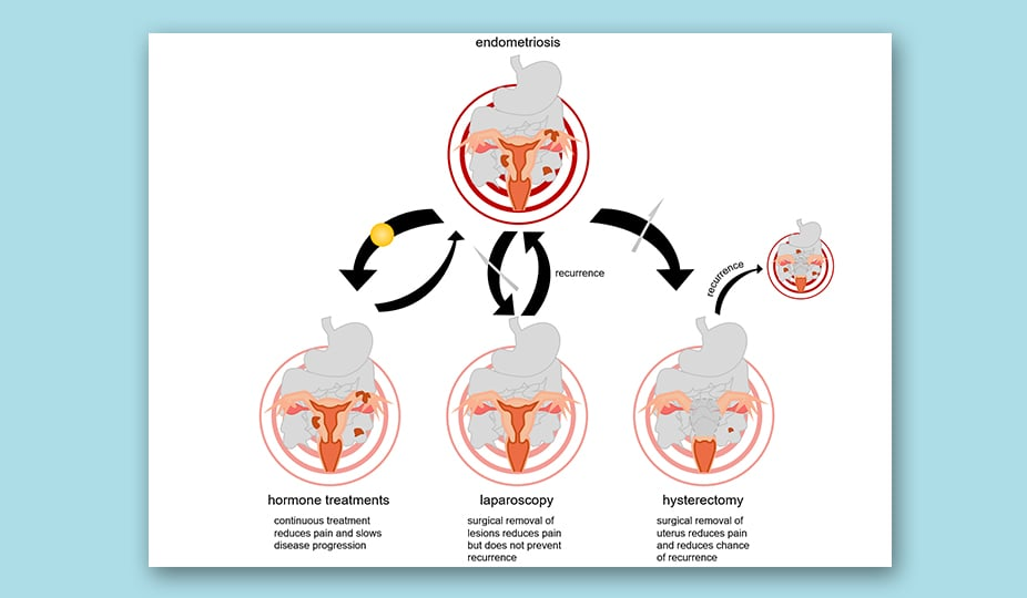 endometriosis medication and diagnostic ways